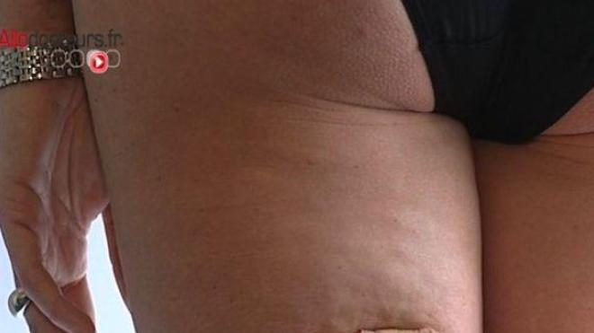 Cellulite : le mal des femmes