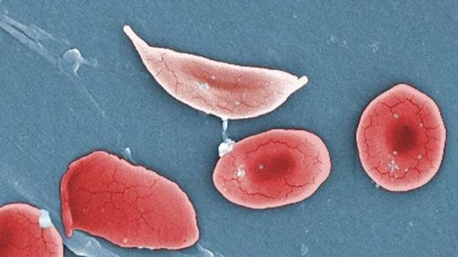 Un nouvel espoir de thérapie génique contre la drépanocytose