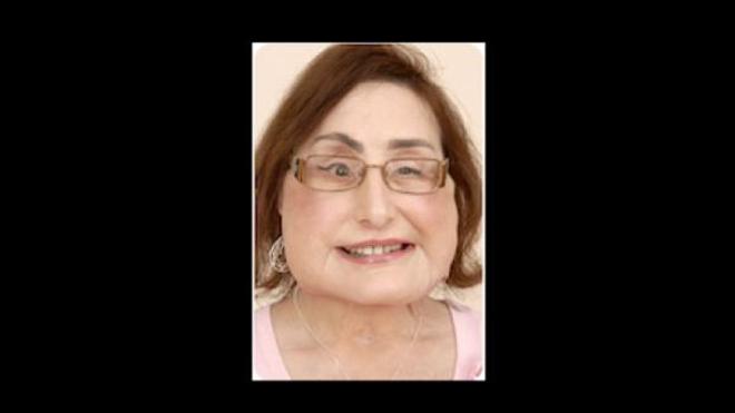 Connie Culp : première américaine greffée du visage est morte à 57 ans.