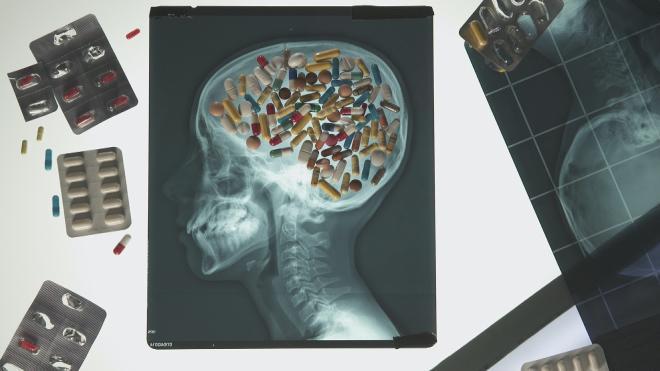 """Enquête de santé : """"Les pièges des médicaments antidouleurs"""""""