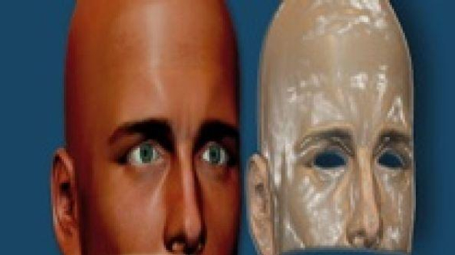 Première greffe totale du visage