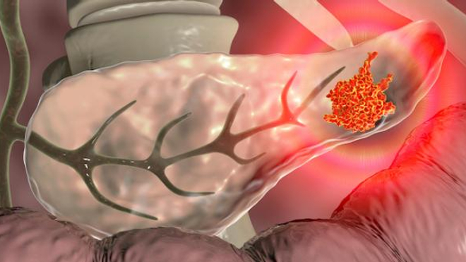 Image d'illustration. Représentation 3D d'une tumeur au niveau du pancréas.