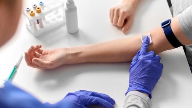 Le dépistage du VIH en forte baisse pendant le 1er confinement