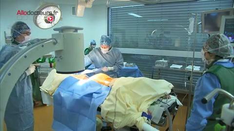 Attention images de chirurgie ! Une fois implanté, le pacemaker peut fonctionner pendant une dizaine d'années.
