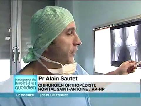 Chirurgie : la prothèse du genou remplace une articulation trop abîmée par l'arthrose.