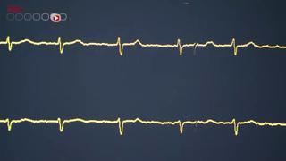 Coeur : un pacemaker miniature