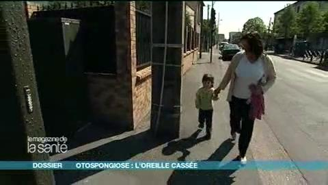 Florence souffre d'otospongiose bilatérale, elle vous raconte comment les premiers symptômes sont apparus...