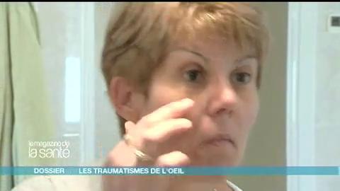Françoise a perdu la vision de l'œil gauche à la suite d'un accident de voiture, elle vit depuis avec une prothèse