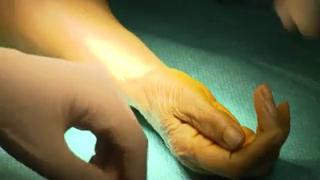 Attention images de chirurgie ! Comment se déroule la trapézectomie
