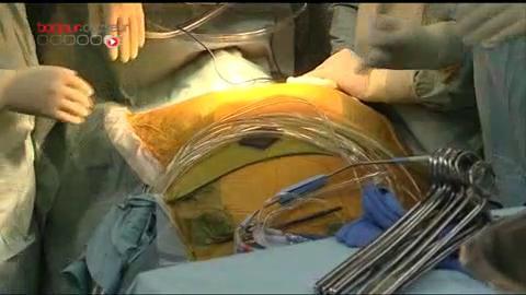 Attention, images de chirurgie : remplacement d'une valve aortique à l'hôpital La Pitié-Salpêtrière