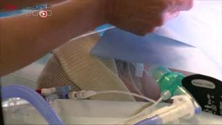 Attention, images de chirurgie : opération à coeur ouvert pour traiter une tétralogie de Fallot
