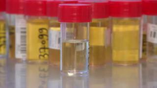 Une analyse des urines est souvent demandée lors de problèmes à la miction. Que recherche-t-on lors de ces analyses ?