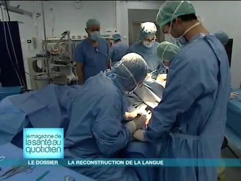 Attention, images d'intervention chirurgicale : la reconstruction de la langue se fait grâce à un lambeau de peau prélevé sur le bras.