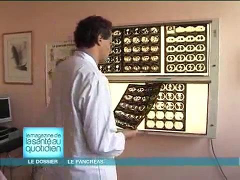 Attention, images d'intervention chirurgicale : le chirurgien retire la partie malade du pancréas.