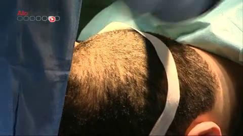 La greffe d'implants capillaires, à quoi ça ressemble ? La réponse en images