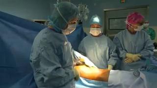 Attention, images de chirurgie ! Comment est réalisé le curage ganglionnaire rétropéritonéal