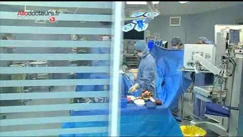 Images de chirurgie : ablation d'une tumeur localisée sur le côlon du patient.