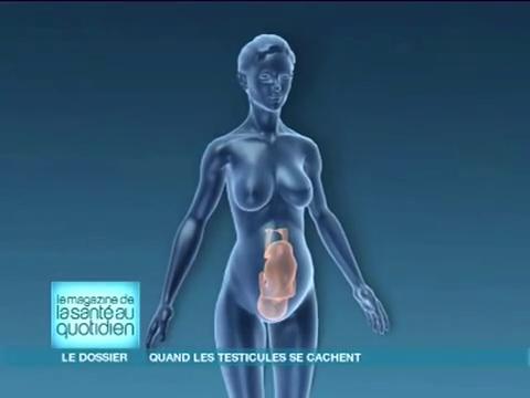 Dans un processus normal, les testicules migrent de l'intérieur du corps aux bourses.
