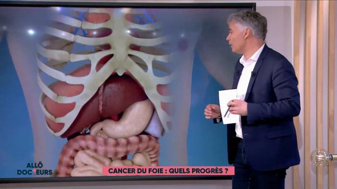 Marina Carrère d'Encausse et Régis Boxelé expliquent le cancer du foie