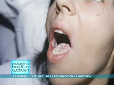 La candidose ou la mycose vaginale sont des infections causées par une levure.