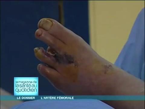 Attention, images d'intervention chirurgicale : le chirurgien utilise une veine pour remplacer l'artère malade.