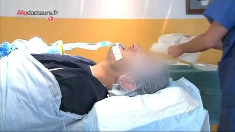 Attention, images d'intervention chirurgicale : à l'aide de ciseaux et d'un burin, le chirurgien retire la bosse du nez.