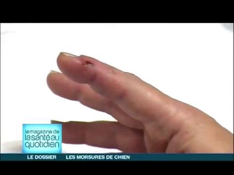 Attention, images d'intervention chirurgicale : il faut veiller à ce que les tendons ne soient pas touchés par la morsure.