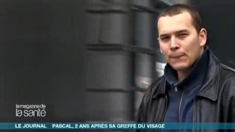 Depuis son opération, Pascal a trouvé un emploi et pense à fonder une famille (reportage du 21/01/2009).