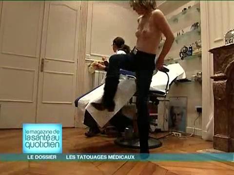 Attention, images d'intervention chirurgicale : l'aréole du sein est progressivement pigmentée.