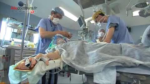 La chirurgie est incontournable dans le traitement des tumeurs ovariennes malignes