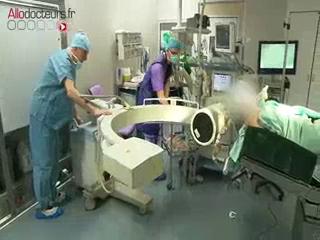 Attention, images d'intervention chirurgicale : le chirurgien atteint l'hypophyse en passant par les narines.