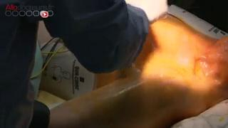 Chirurgie : pose d'un pacemaker
