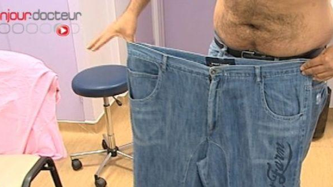 Sleeve gastrectomie, la moins connue des chirurgies de l'obésité