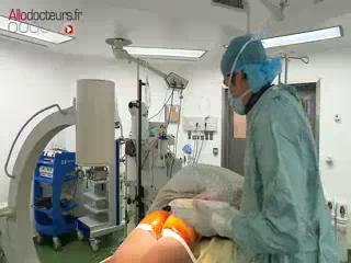 La neuromodulation pour traiter l'incontinence par hyperactivité.