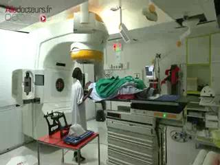 Comment se passe une séance de radiothérapie stéréotaxique ?