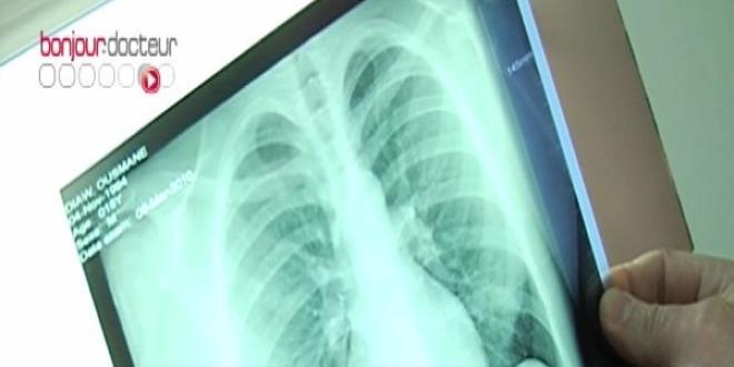 Dépistage de la tuberculose en Seine-Saint-Denis