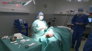 Attention, images de chirurgie ! Le lifting consiste à décoller et retendre la peau, puis à en enlever l'excédent