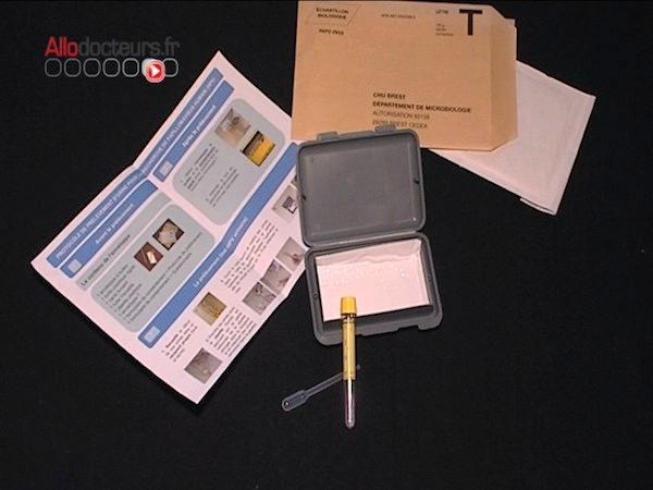 Expérimentation d'un test urinaire pour dépister le cancer du col de l'utérus