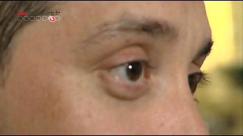 Carlos souffre d'une blépharite chronique depuis 2003.