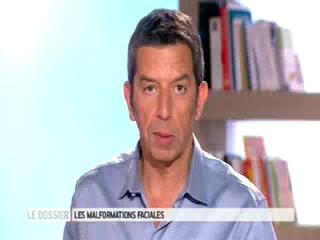 Marina Carrère d'Encausse et Michel Cymes expliquent les anomalies faciales rares.