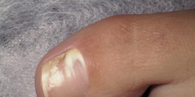 Mycose de l'ongle