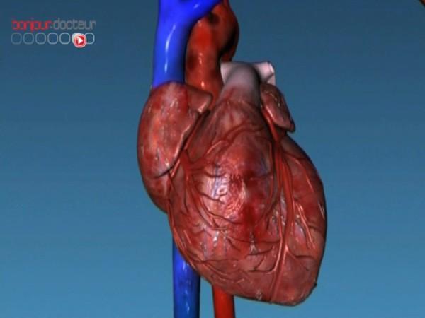 Baisse de la mortalité par infarctus en France