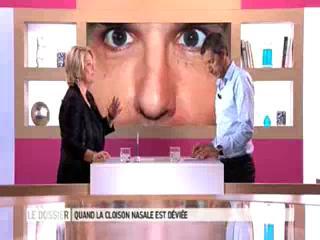 Marina Carrère d'Encausse et Michel Cymes expliquent les déviations de la cloison nasale.