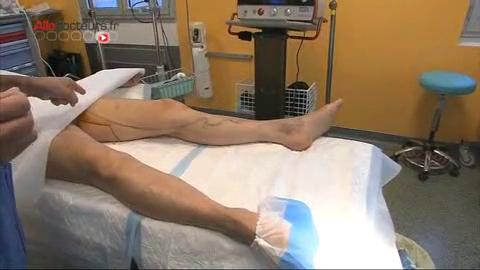 Attention, images de chirurgie ! L'intervention consiste à brûler la veine de l'intérieur en la laissant en place avec une fibre laser.