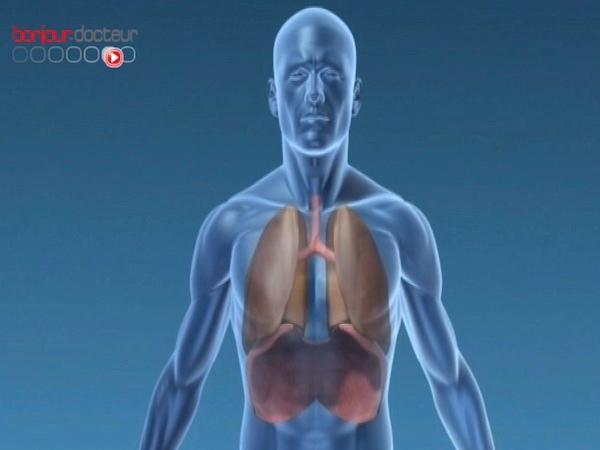 La pneumonie, une infection respiratoire aigüe
