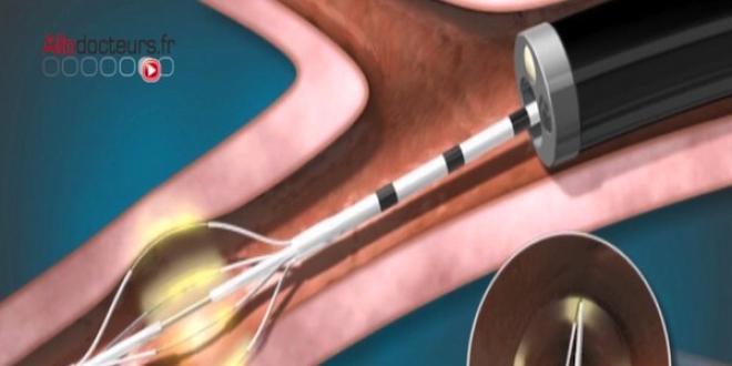 Asthme sévère : l'espoir de la thermoplastie