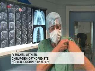 Attention, images de chirurgie ! L'acromioplastie permet de soulager les tendons de l'épaule