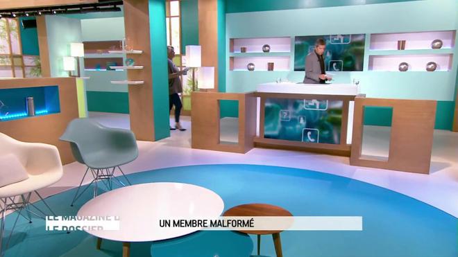 Michel Cymes et Marina Carrère d'Encausse expliquent les malformations des membres