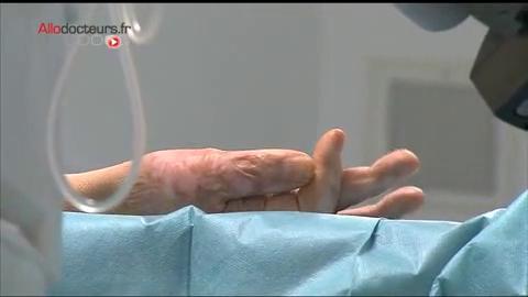 Attention images de chirurgie ! Le déroulement d'une greffe de peau