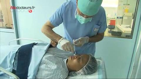 Comment se déroule une turbinoplastie ?